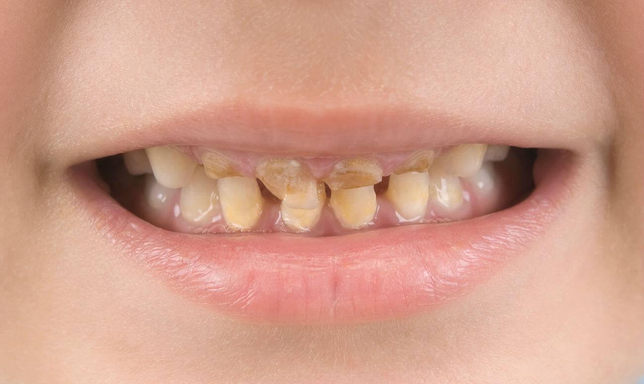 Почему крошатся и разрушаются зубы?