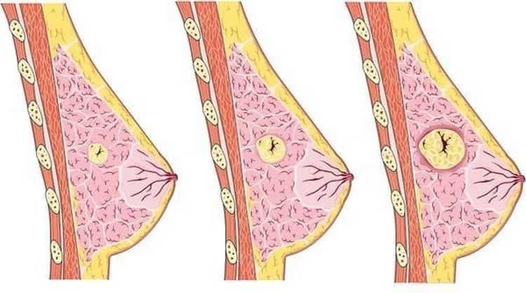 Особенности лечения кисты молочной железы народными средствами
