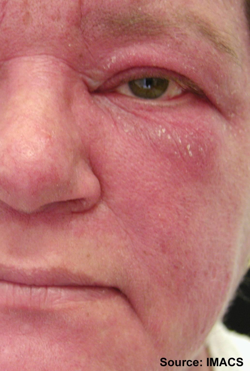 Распространенные болезни и проблемы кожи лица
