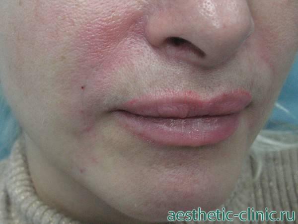 Последствия увеличения губ: боль, шарики, фиброз, комки