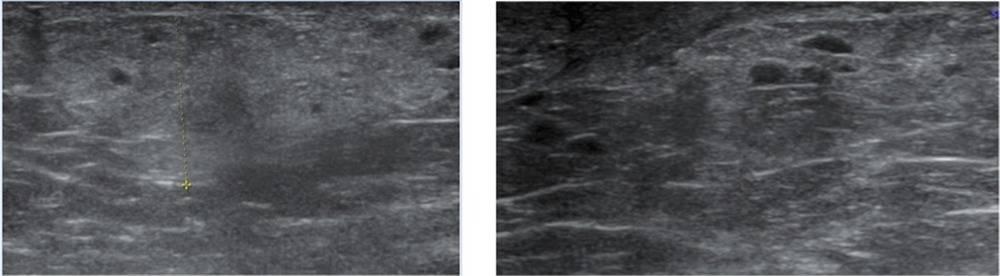 Узи молочных желез — патология (лекция на диагностере)