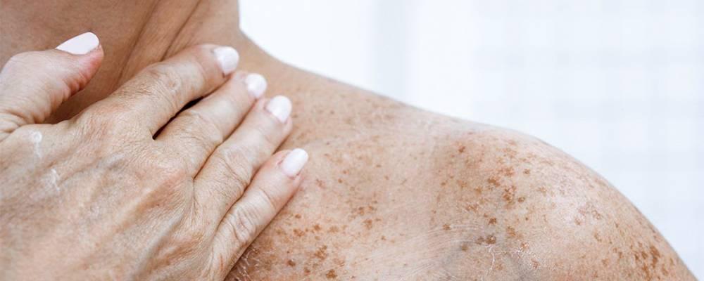 Как избавиться от возрастных пигментных пятен на лице