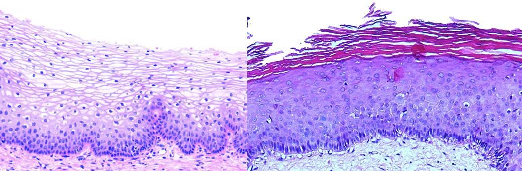 Гиперкератоз шейки матки – причины, симптомы и признаки, диагностика, методы лечения