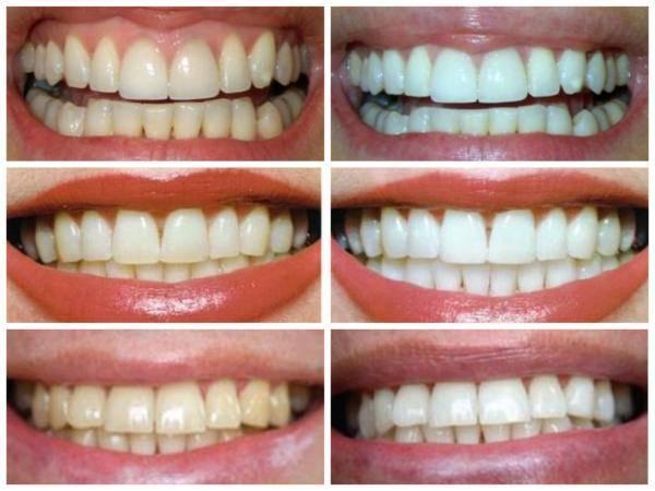 Ограничения после отбеливания зубов — что можно и нельзя есть?