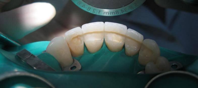 Время для шинирования зубов