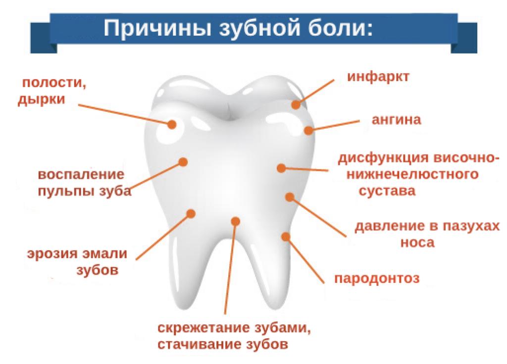 Первая помощь, когда сильно болит зуб под коронкой: как снять боль в домашних условиях?