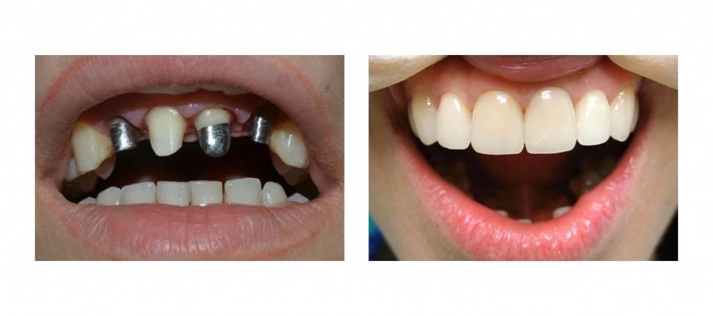 Пластмассовые коронки на зубы: отзывы
