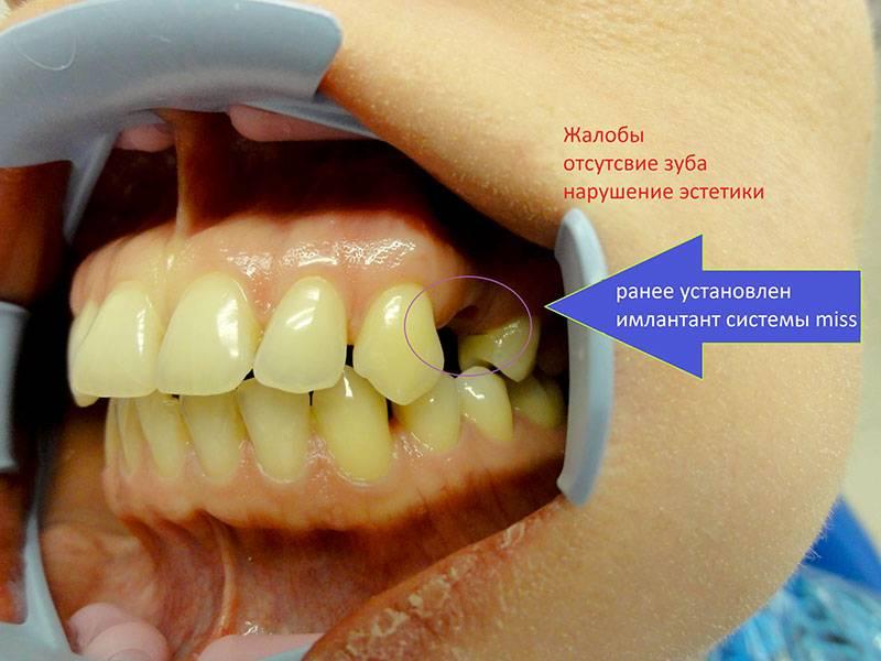 Можно ли восстановить обточенный зуб