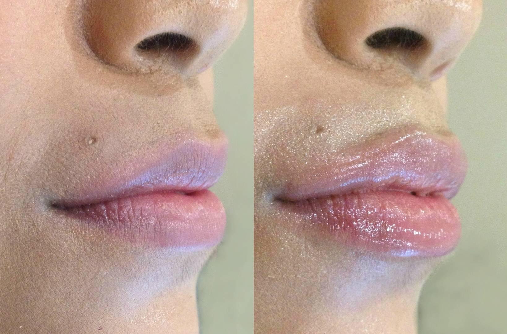 Как увеличивают губы ботоксом