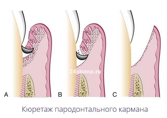Открытый и закрытый кюретаж пародонтального или десневого кармана: что это за процедура, как ее проводят?