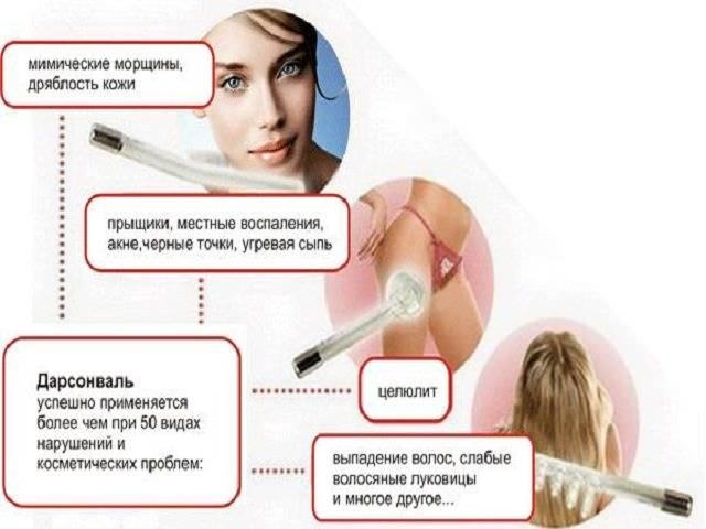Инструкция поприменению дарсонваля для лица: как правильно пользоваться отморщин ипрыщей, отзывы