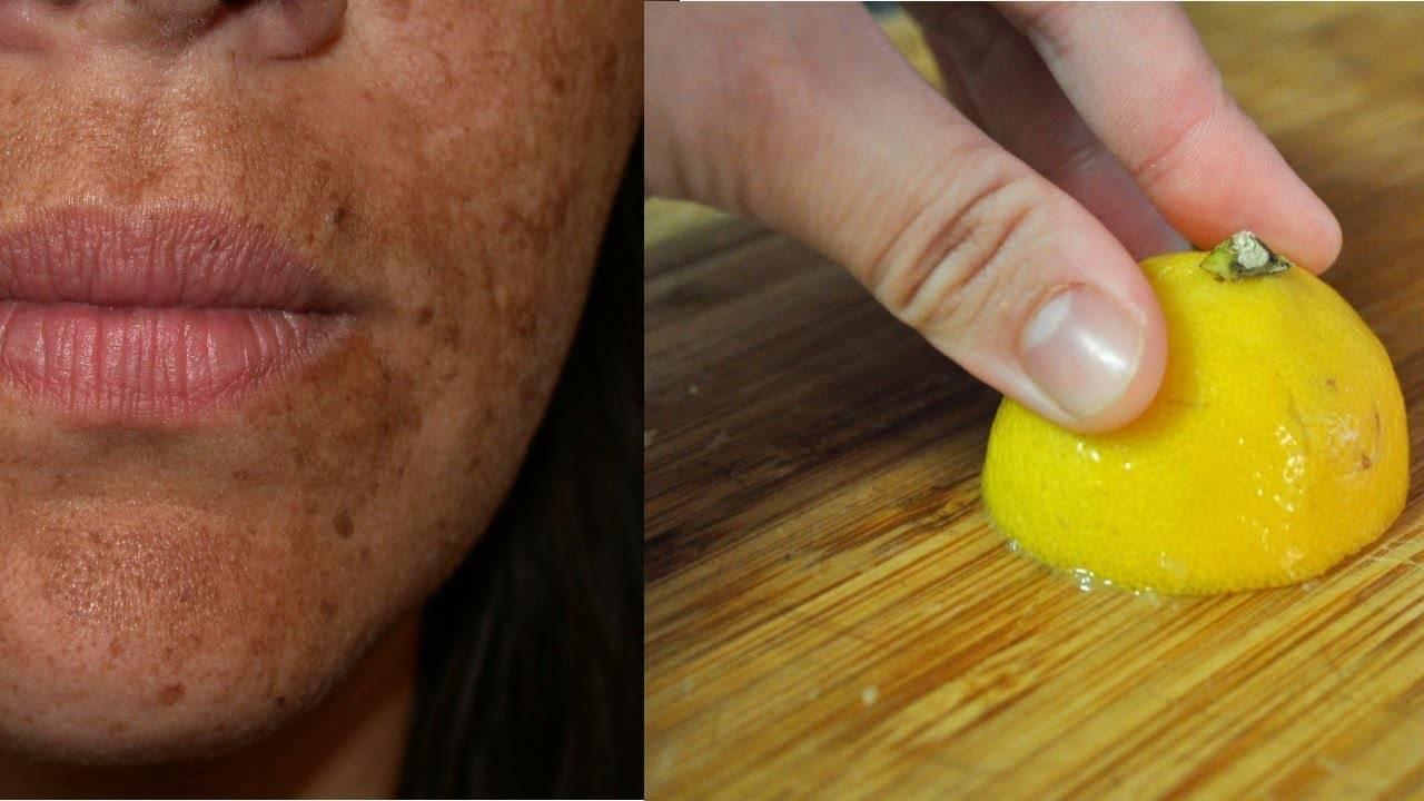 Применение эфирного масла лимона для кожи лица