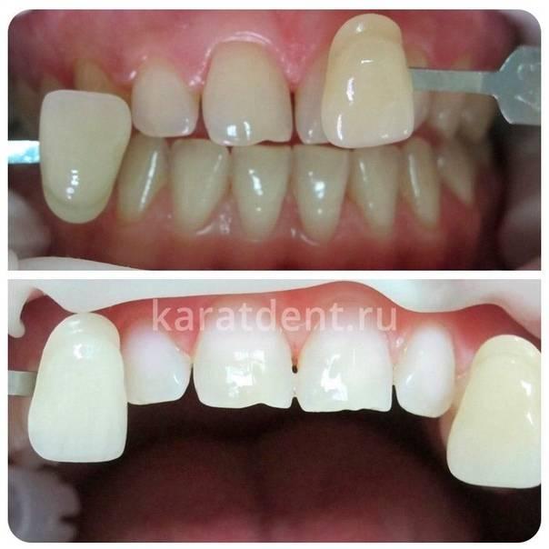 Отбеливание зубов системой opalescence