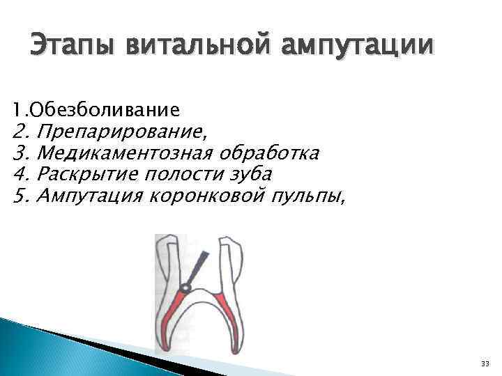 Экстирпация пульпы — эффективный способ сохранения зуба