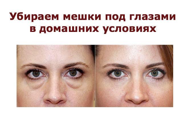 Когда отражение в зеркале не радует или как быстро и эффективно убрать мешки под глазами