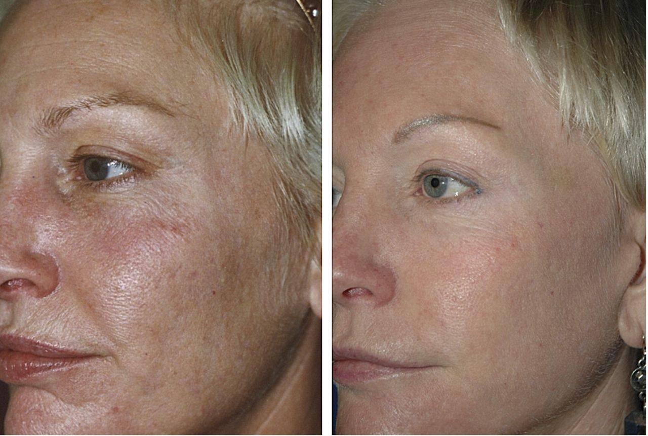 Биоревитализация лица и кожи в москве