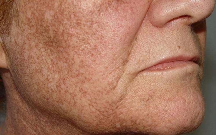 Как быстро и эффективно избавиться от возрастных пигментных пятен