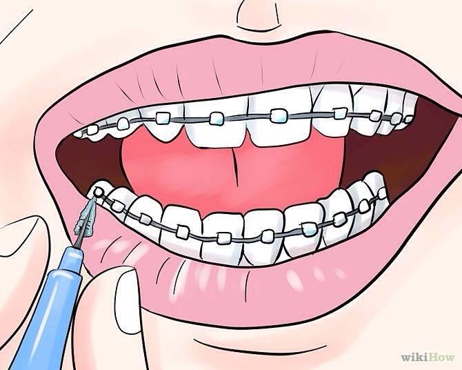 Что делать, если шатаются зубы у взрослого и почему это может происходить?
