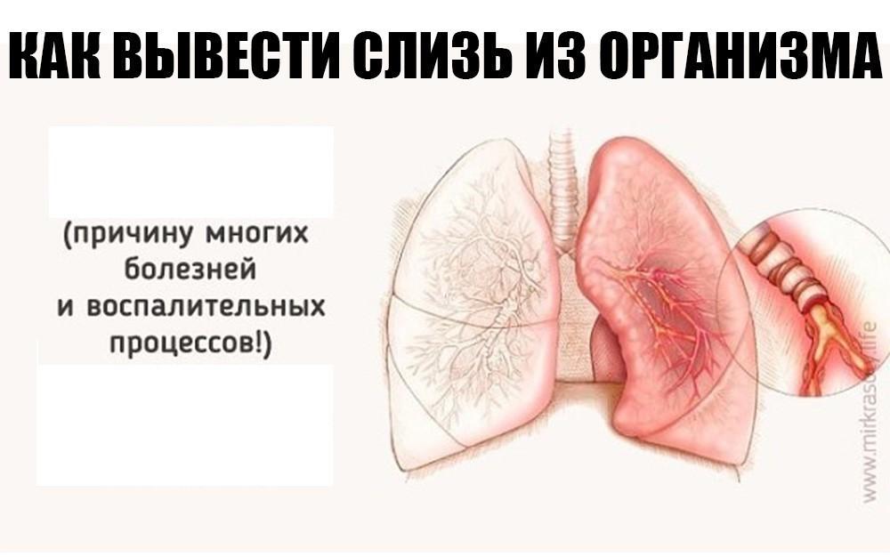 Причины и лечение слизи в горле, когда постоянно сглатываешь, а она не уходит