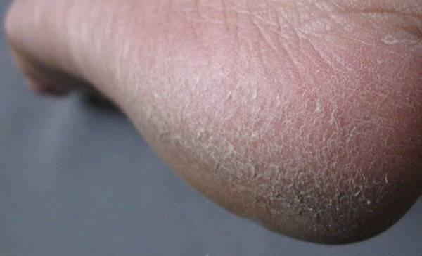 Трескается кожа на ногах — чем лечится и как избавиться от неприятности легко и просто (75 фото и видео)