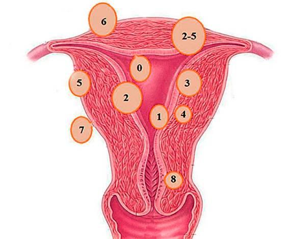 Современные взгляды на лечение субмукозной миомы матки