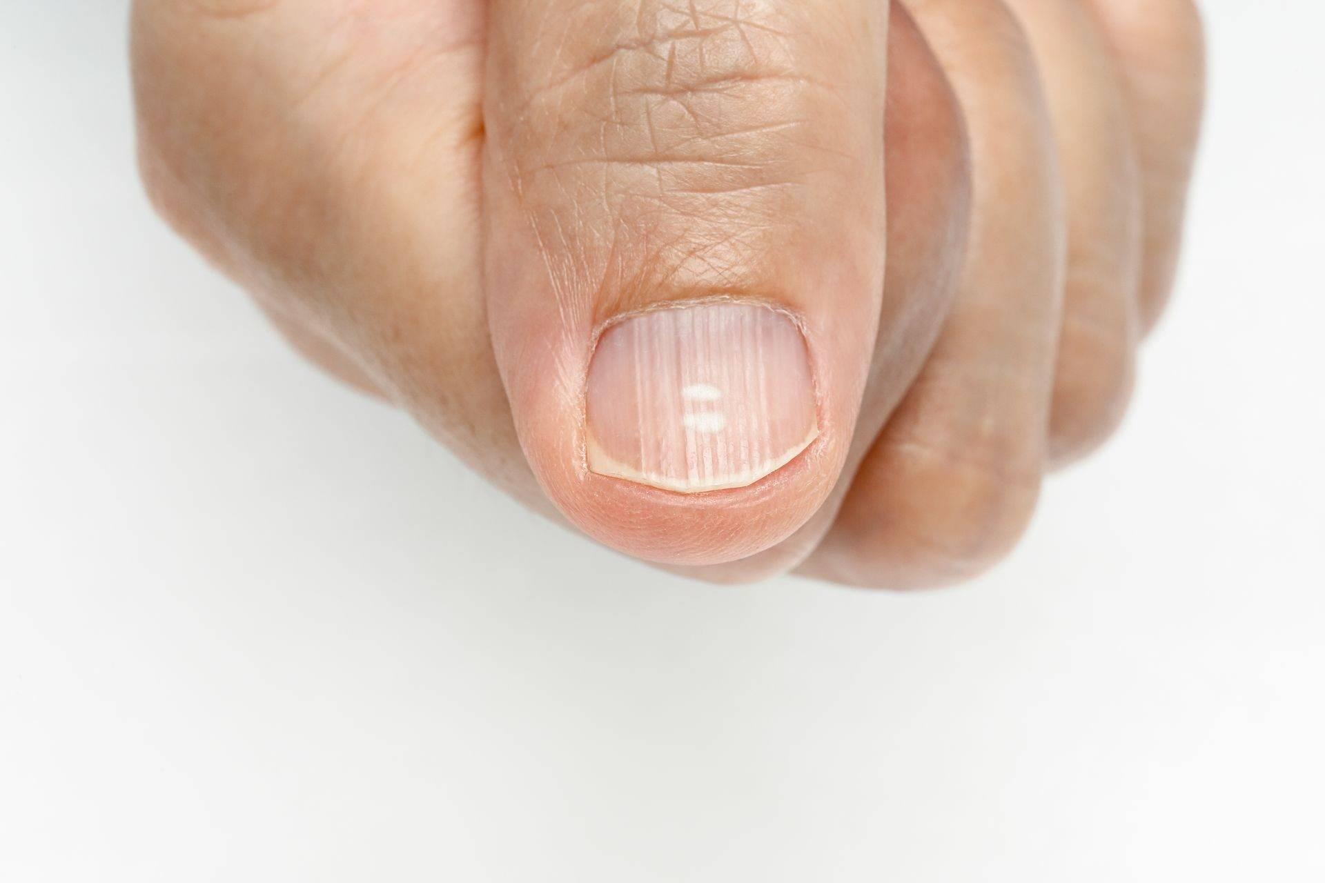 Что делать, когда слоятся и ломаются ногти на руках и ногах?