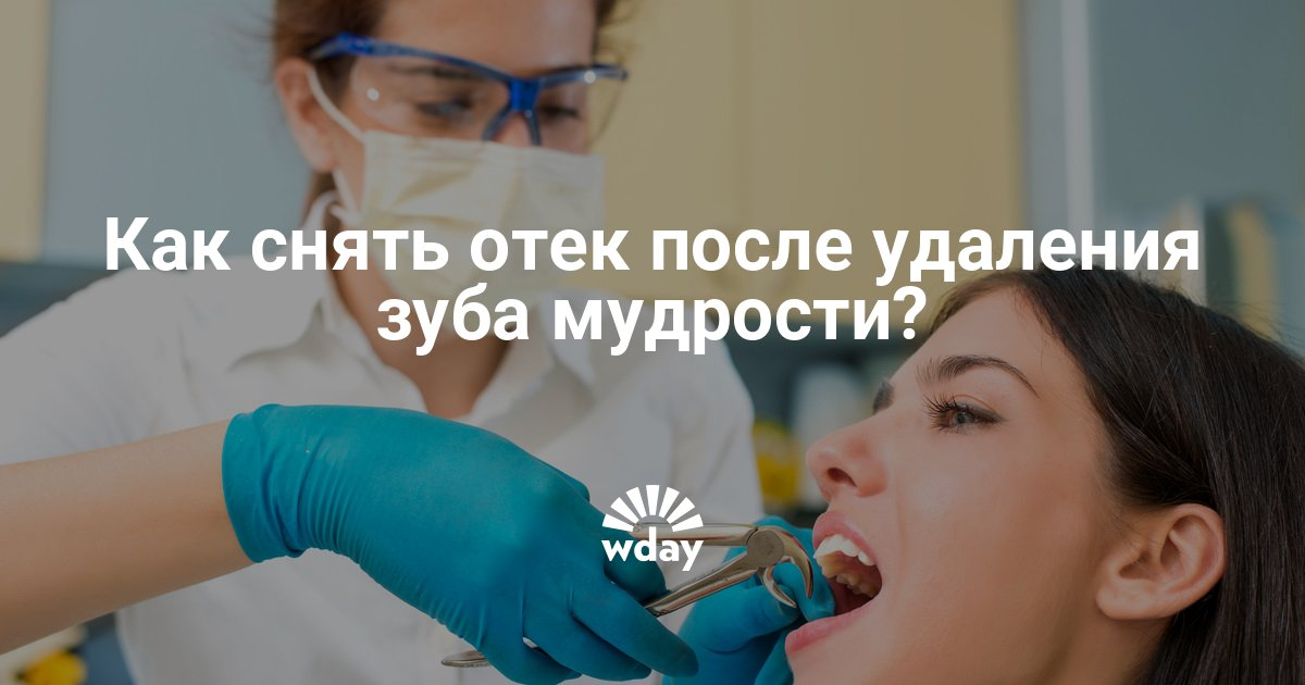 Серьезные осложнения: больно глотать после удаления зуба мудрости