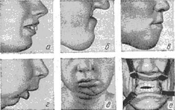 """Тесты с ответами по специальности """"стоматология-ортодонтия"""""""