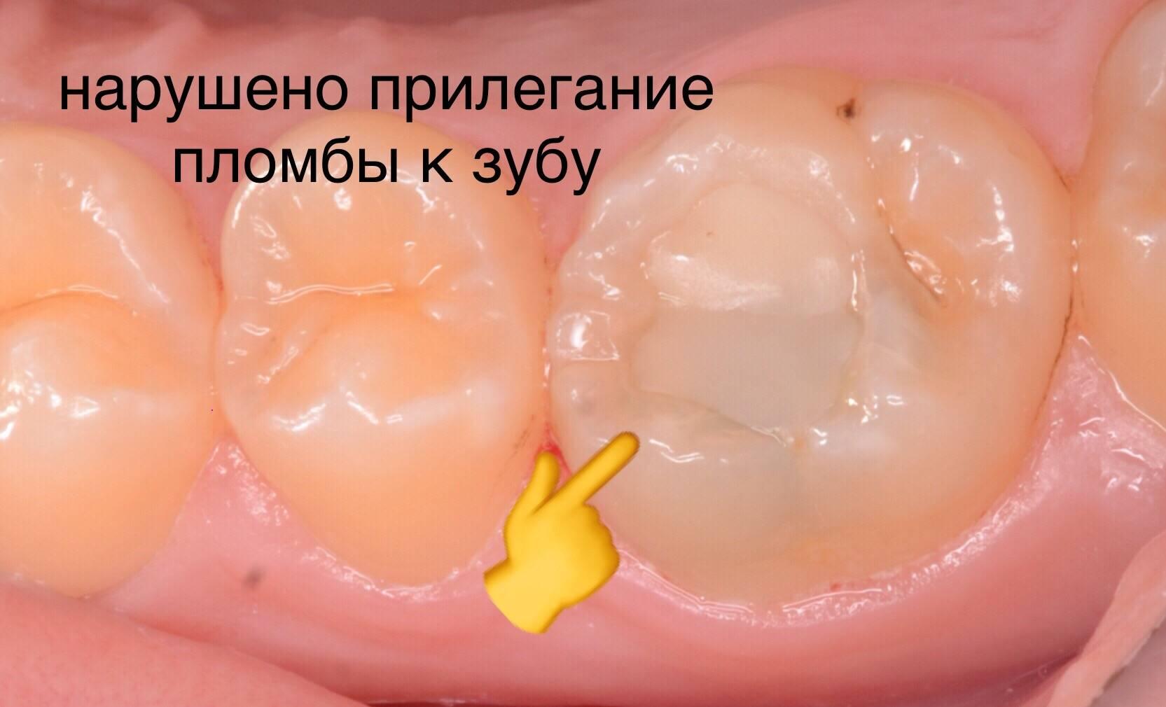 Почему зубы стали черными: причины потемнения эмали снаружи и изнутри, у корня и под пломбой