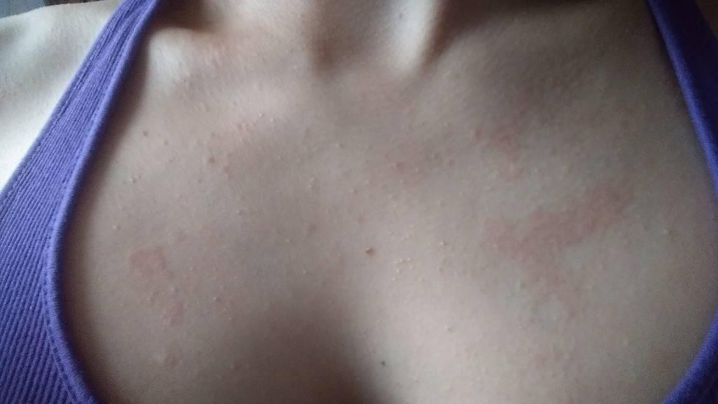 Красные точки на теле: причины появления, диагностика, лечение