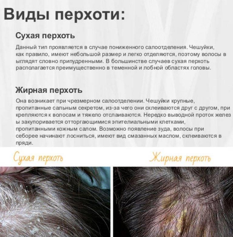 Жирная себорея как дерматологическое заболевание: причины и пути устранения
