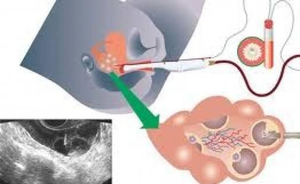 Стимуляция яичников при поликистозе (пкя)