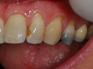 Почернели зубы под пломбой причины и симптомы
