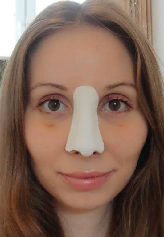 Как проходит реабилитация после ринопластики — ограничения и рекомендации