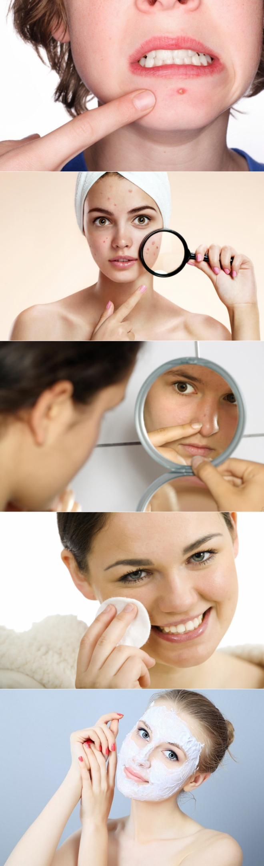 15 способов избавления от прыщей на лице