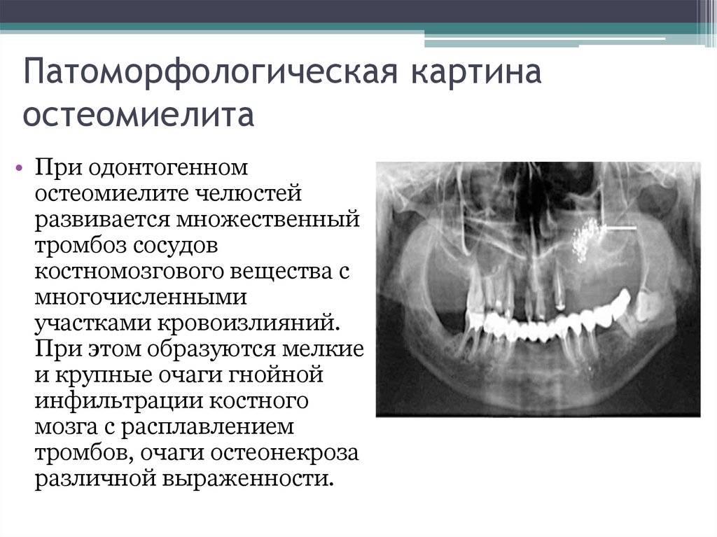 Остеомиелит челюсти: современные методы лечения