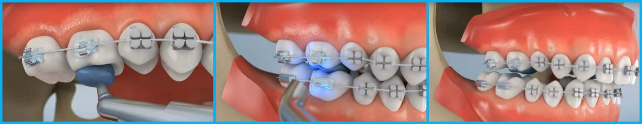 Виды зубных пломб: какие бывают, какие лучше ставить