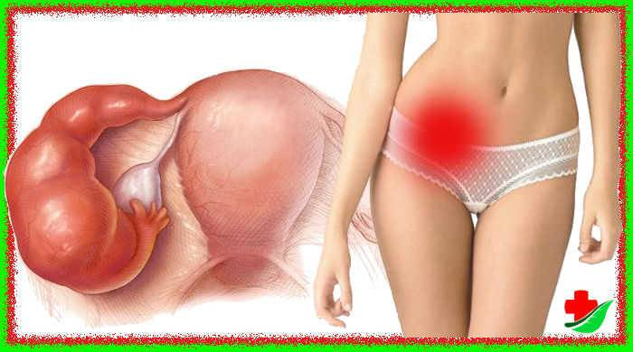 Симптомы воспаления яичников у женщин и эффективное лечение патологии