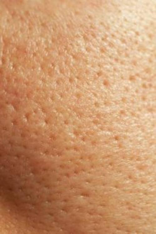20 способов избавления от расширенных пор на лице