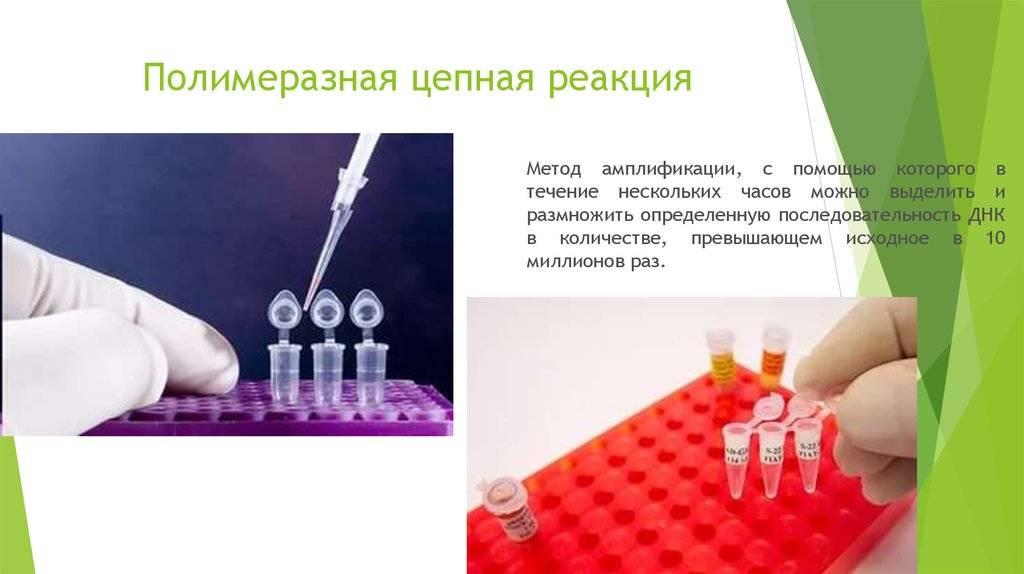 Гинекологический мазок на флору – доступный способ диагностики женских заболеваний