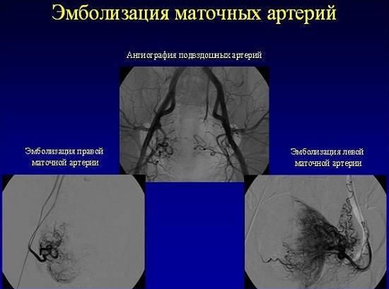 Период после эмболизации маточных артерий