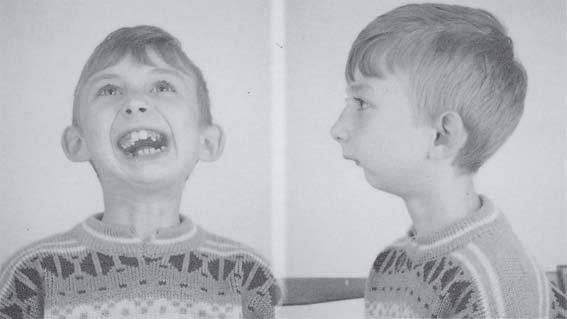 Способы и прогноз лечения сужения челюстей и зубных рядов
