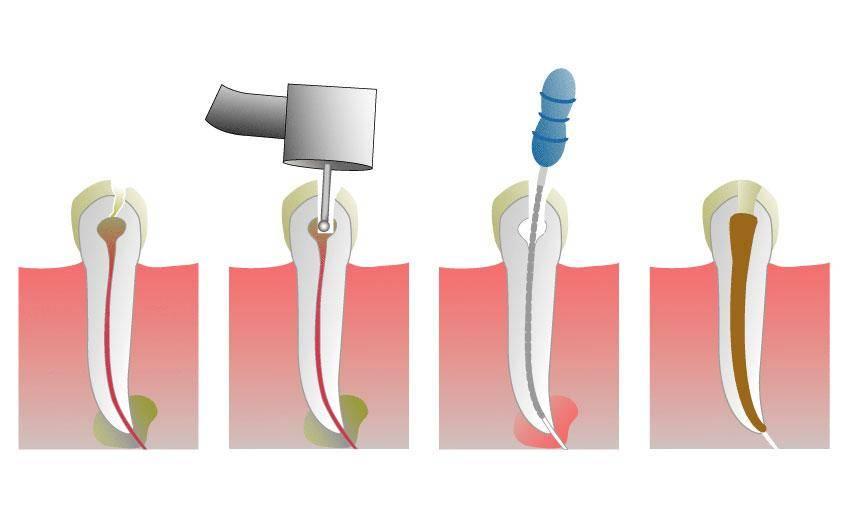 Чистка каналов зуба: как проводится, последствия, что делают после