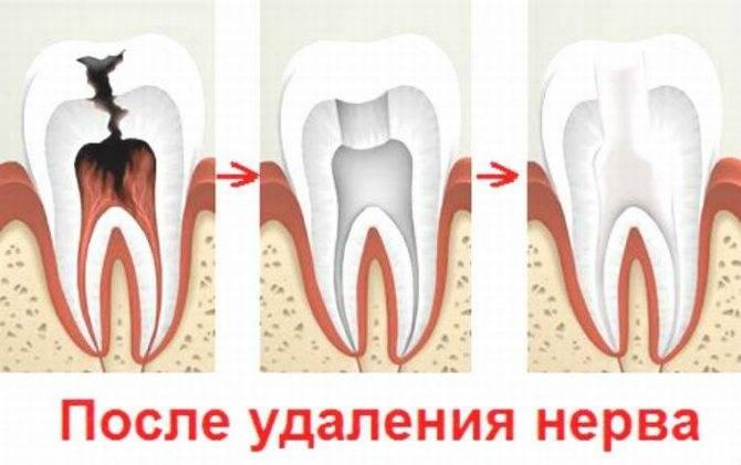 Подробно о том, что делать, если болит мертвый зуб