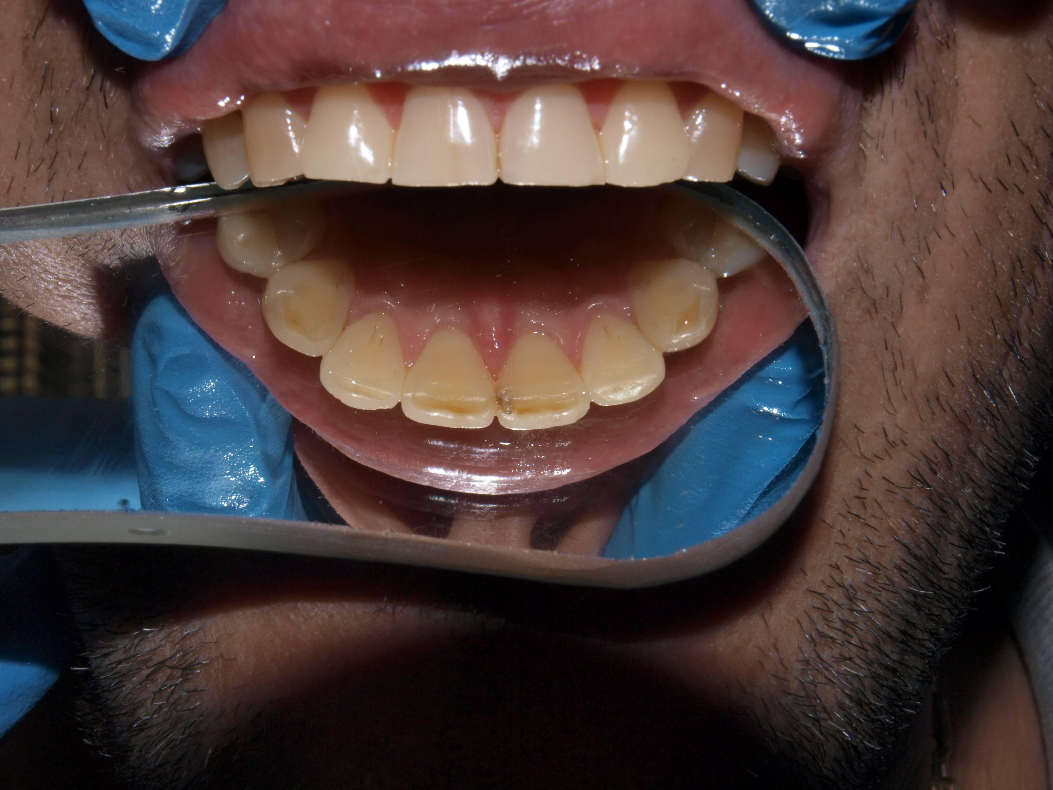 Плюсы и минусы ультразвуковой чистки зубов