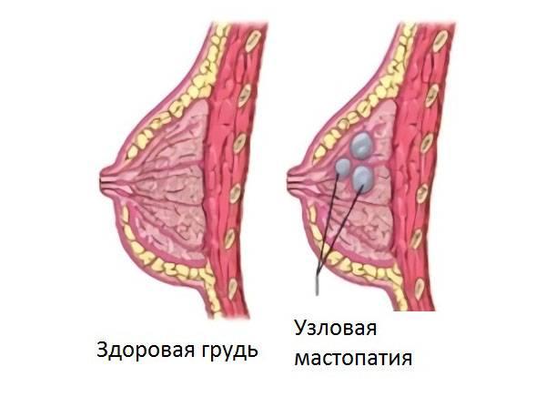 Поставлен диагноз «остаточные явления фиброзно-кистозной мастопатии»: что это такое и каковы прогнозы?