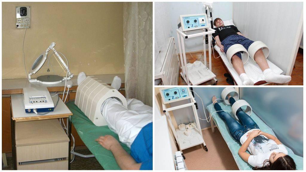 Какие виды физиотерапии используются при эндометриозе?