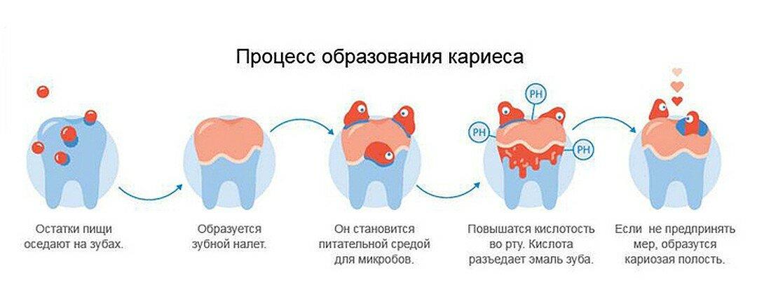 Дистальный прикус - симптомы и лечение