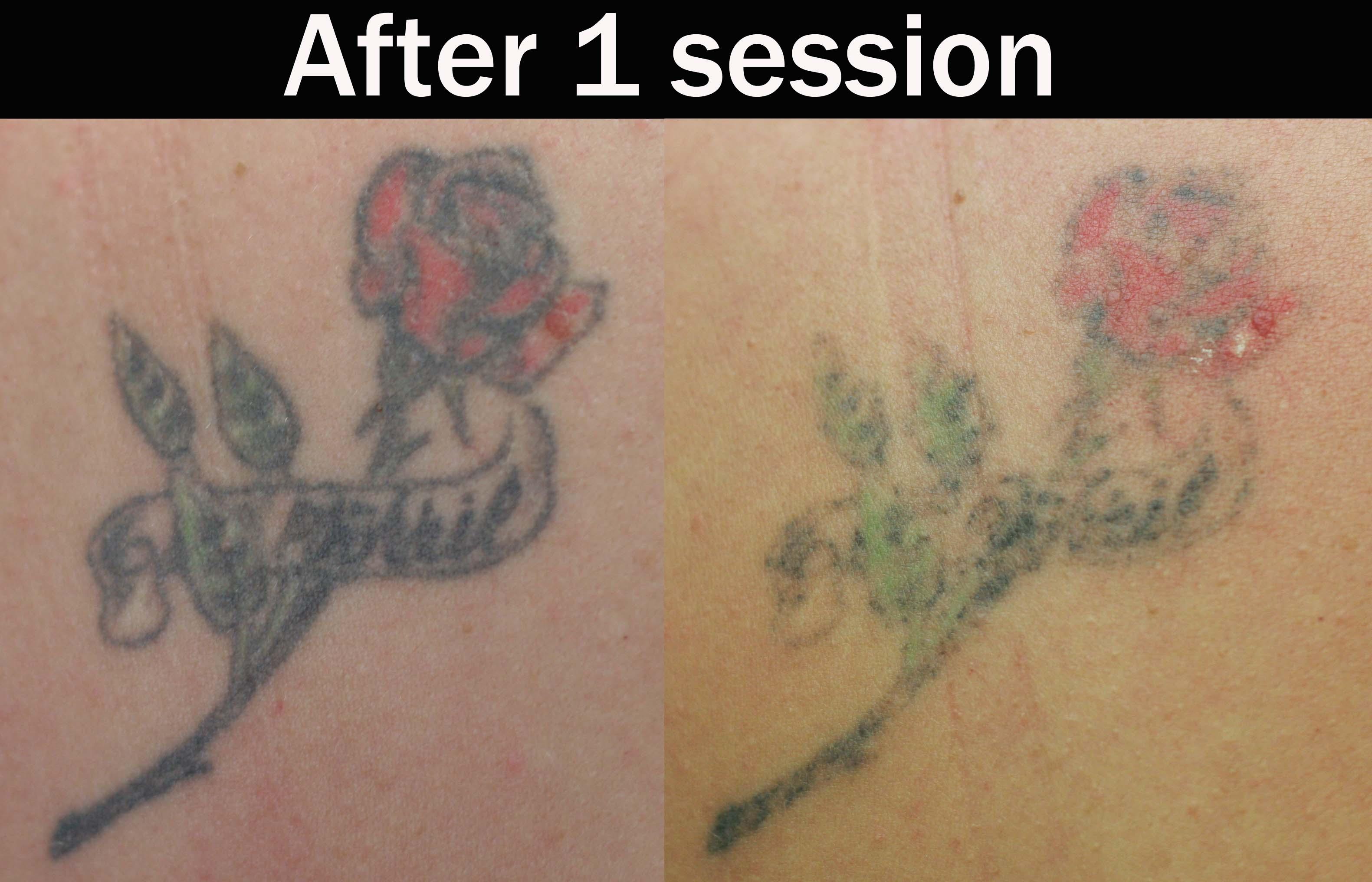 Как удалить цветную татуировку