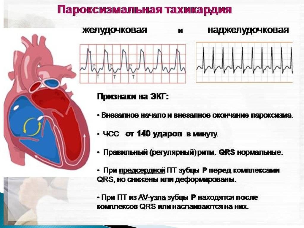 Повышенное артериальное давление при менструации и перед месячными